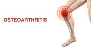remedies for osteoarthritis
