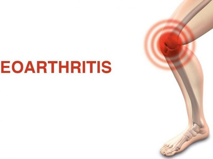 Home remedies for osteoarthritis
