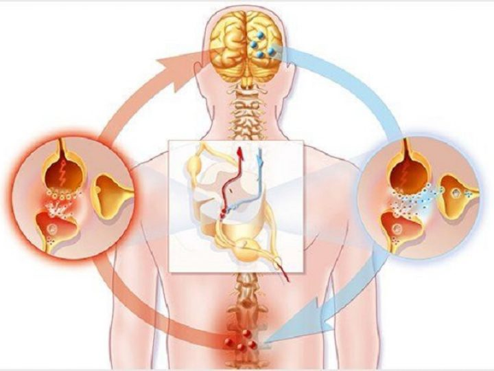 Neuropathic pain: types, causes, treatment